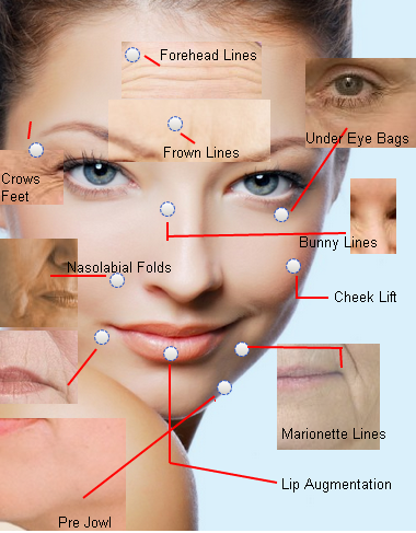 Treatment-for-women-coventry-botox